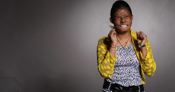 This Designer And These Models Are Helping To Raise Awareness Of Acid Attacks In India